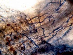 Corylus Tuber